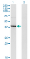 Western blot of HDAC8 expression in transfected 293T cell line by HDAC8 monoclonal antibody (M07), clone 2F4.