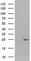 HEK293T cells were transfected with the pCMV6-ENTRY control (Left lane) or pCMV6-ENTRY HDHD1A (Right lane) cDNA for 48 hrs and lysed. Equivalent amounts of cell lysates (5 ug per lane) were separated by SDS-PAGE and immunoblotted with anti-HDHD1A.