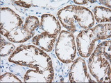 IHC of paraffin-embedded Human Kidney tissue using anti-HIBCH mouse monoclonal antibody. (Dilution 1:50).