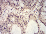 HIST2H3C Antibody - Immunohistochemical analysis of paraffin-embedded colon cancer tissues using HIST2H3C(27Ac) mouse mAb with DAB staining.