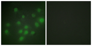 HKR1 Antibody - Immunofluorescence analysis of HUVEC cells, using HKR1 Antibody. The picture on the right is blocked with the synthesized peptide.