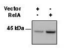 HLA-A/B/C Antibody - HEK293 cells were transfected with RelA or empty vector and 24hrs later cell extracts harvested using a 1% CHAPS lysis buffer. Extracts were resolved by non-denaturing, non-reducing electrophoresis, transferred to nitrocellulose, and probed with a 1:500 d