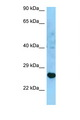 HLA-DRB3 Antibody - HLA-DRB3 antibody Western blot of U937 Cell lysate. Antibody concentration 1 ug/ml.  This image was taken for the unconjugated form of this product. Other forms have not been tested.