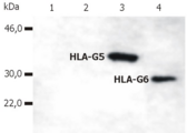 Western Blotting analysis of whole cell lysate of HLA-G stable transfectants (various splice variants) using anti-human HLA-G (5A6G7).  Lane 1: M8 cell line transfected with empty vector  Lane 2: M8 cell line transfected with HLA-G1  Lane 3: M8 cell line transfected with HLA-G5  Lane 4: M8 cell line transfected with HLA-G6