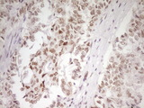 IHC of paraffin-embedded Adenocarcinoma of Human endometrium tissue using anti-HMG20A mouse monoclonal antibody. (Heat-induced epitope retrieval by 1 mM EDTA in 10mM Tris, pH8.5, 120°C for 3min).
