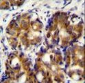 HMMR Antibody immunohistochemistry of formalin-fixed and paraffin-embedded human breast carcinoma followed by peroxidase-conjugated secondary antibody and DAB staining.