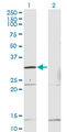 Western blot of HOXB1 expression in transfected 293T cell line by HOXB1 monoclonal antibody (M13), clone 2E5.