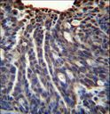 HOXB3 Antibody immunohistochemistry of formalin-fixed and paraffin-embedded human ovarian carcinoma followed by peroxidase-conjugated secondary antibody and DAB staining.
