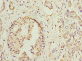 Immunohistochemistry of paraffin-embedded human pancreatic cancer at dilution 1:100