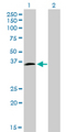Western Blot analysis of HOXD8 expression in transfected 293T cell line by HOXD8 monoclonal antibody (M01), clone 10F8.Lane 1: HOXD8 transfected lysate(31.8 KDa).Lane 2: Non-transfected lysate.