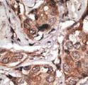 HTRA1 Antibody - Formalin-fixed and paraffin-embedded human cancer tissue reacted with the primary antibody, which was peroxidase-conjugated to the secondary antibody, followed by DAB staining. This data demonstrates the use of this antibody for immunohistochemistry; clinical relevance has not been evaluated. BC = breast carcinoma; HC = hepatocarcinoma.