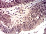 HTRA2 / OMI Antibody - Immunohistochemical analysis of paraffin-embedded esophageal cancer tissues using HTRA2 mouse mAb with DAB staining.