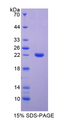 ADGRE2 / EMR2 Protein - Recombinant  EGF Like Module Containing Mucin Like Hormone Receptor 2 By SDS-PAGE