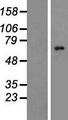 ALG8 Protein - Western validation with an anti-DDK antibody * L: Control HEK293 lysate R: Over-expression lysate