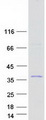 ALKBH6 Protein - Purified recombinant protein ALKBH6 was analyzed by SDS-PAGE gel and Coomassie Blue Staining
