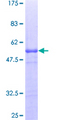 12.5% SDS-PAGE of human APBB1IP stained with Coomassie Blue