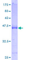ARL14 Protein - 12.5% SDS-PAGE of human FLJ22595 stained with Coomassie Blue