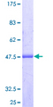 ARL8A Protein - 12.5% SDS-PAGE of human ARL8A stained with Coomassie Blue