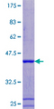 12.5% SDS-PAGE of human ATP6V1F stained with Coomassie Blue
