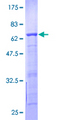 BCCIP Protein - 12.5% SDS-PAGE of human BCCIP stained with Coomassie Blue