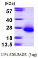 C6orf108 Protein