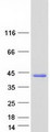 Purified recombinant protein CCDC69 was analyzed by SDS-PAGE gel and Coomassie Blue Staining