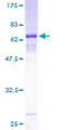 12.5% SDS-PAGE of human CDK6 stained with Coomassie Blue