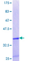 CITED4 Protein - 12.5% SDS-PAGE Stained with Coomassie Blue.