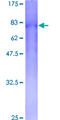 CSGALNACT2 Protein - 12.5% SDS-PAGE of human GALNACT-2 stained with Coomassie Blue