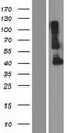 CYHR1 Protein - Western validation with an anti-DDK antibody * L: Control HEK293 lysate R: Over-expression lysate