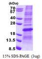 Sodium Dodecyl Sulfate - Polyacrylamide Gel Electrophoresis Image