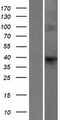 F8A2 Protein - Western validation with an anti-DDK antibody * L: Control HEK293 lysate R: Over-expression lysate