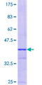 FOXS1 Protein - 12.5% SDS-PAGE Stained with Coomassie Blue.
