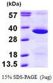 GNPDA1 Protein