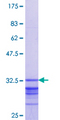 HOXC5 Protein - 12.5% SDS-PAGE Stained with Coomassie Blue.