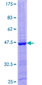 IL26 Protein - 12.5% SDS-PAGE of human IL26 stained with Coomassie Blue