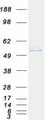 Purified recombinant protein INPP5K was analyzed by SDS-PAGE gel and Coomassie Blue Staining