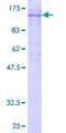 KF1 / RNF103 Protein - 12.5% SDS-PAGE of human RNF103 stained with Coomassie Blue