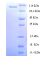 MCM2 Protein