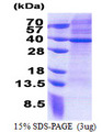 MRPS2 Protein