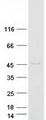 MRPS22 Protein - Purified recombinant protein MRPS22 was analyzed by SDS-PAGE gel and Coomassie Blue Staining