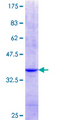 NCKIPSD / AF3P21 Protein - 12.5% SDS-PAGE Stained with Coomassie Blue.