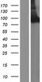 Neurochondrin Protein - Western validation with an anti-DDK antibody * L: Control HEK293 lysate R: Over-expression lysate