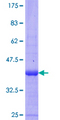 NOLA2 Protein - 12.5% SDS-PAGE Stained with Coomassie Blue.