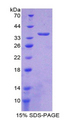 NT5C3A Protein - Recombinant 5'-Nucleotidase, Cytosolic III By SDS-PAGE