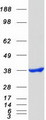 NT5C3A Protein - Purified recombinant protein NT5C3A was analyzed by SDS-PAGE gel and Coomassie Blue Staining