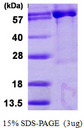 PAPSS 1 Protein