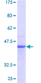 PDCD6 / ALG-2 Protein - 12.5% SDS-PAGE of human PDCD6 stained with Coomassie Blue