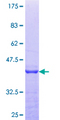 PEX14 Protein - 12.5% SDS-PAGE Stained with Coomassie Blue.
