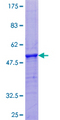 PRH2 Protein - 12.5% SDS-PAGE of human PRH2 stained with Coomassie Blue